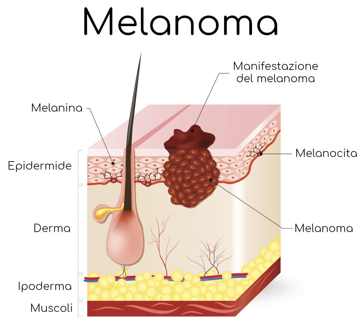 Infografica dell'anatomia del melanoma