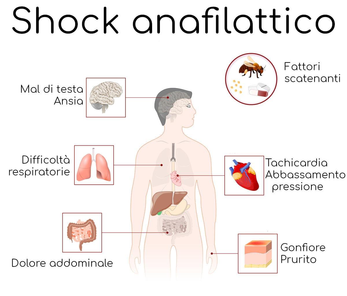 Infografica con i più comuni sintomi di shock anafilattico