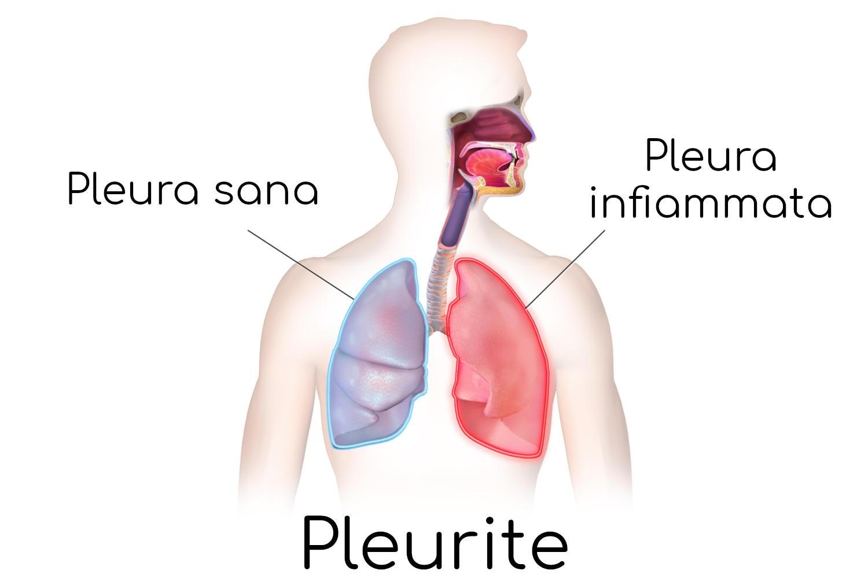 Pleurite, semplificazione anatomica