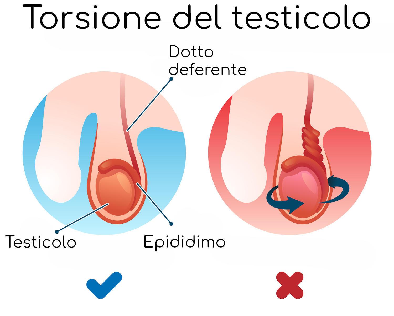 Anatomia semplificata della torsione testicolare