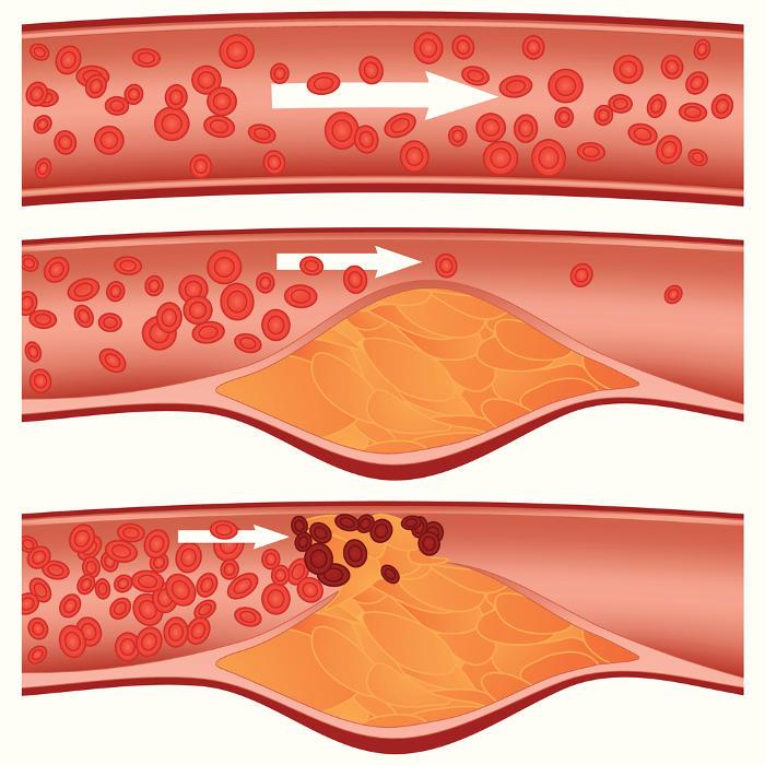 Fasi successive dell'aterosclerosi, dall'alto verso il basso rispettivamente arteria sana, formazione della placca, blocco del flusso sanguigno (credit: iStock.com/Diamond_Images)