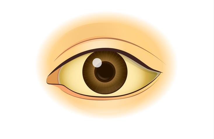 Disegno di un occhio umano colpito da ittero, sintomo caratteristico della sindrome di Gilbert