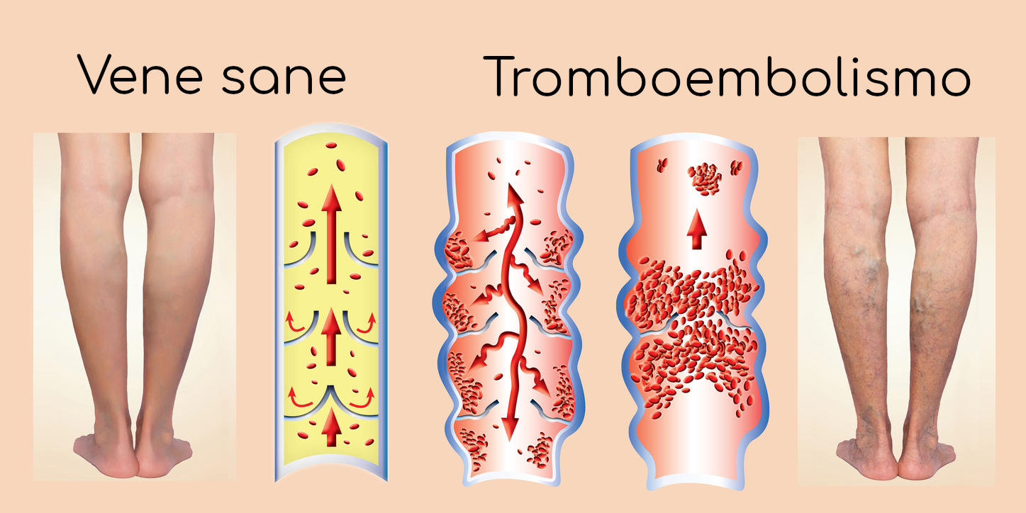 Vene sane in paragone a trombosi venosa profonda