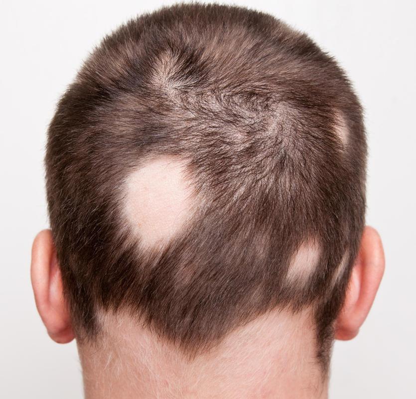 Fotografia della nuca di un uomo colpito da alopecia areata