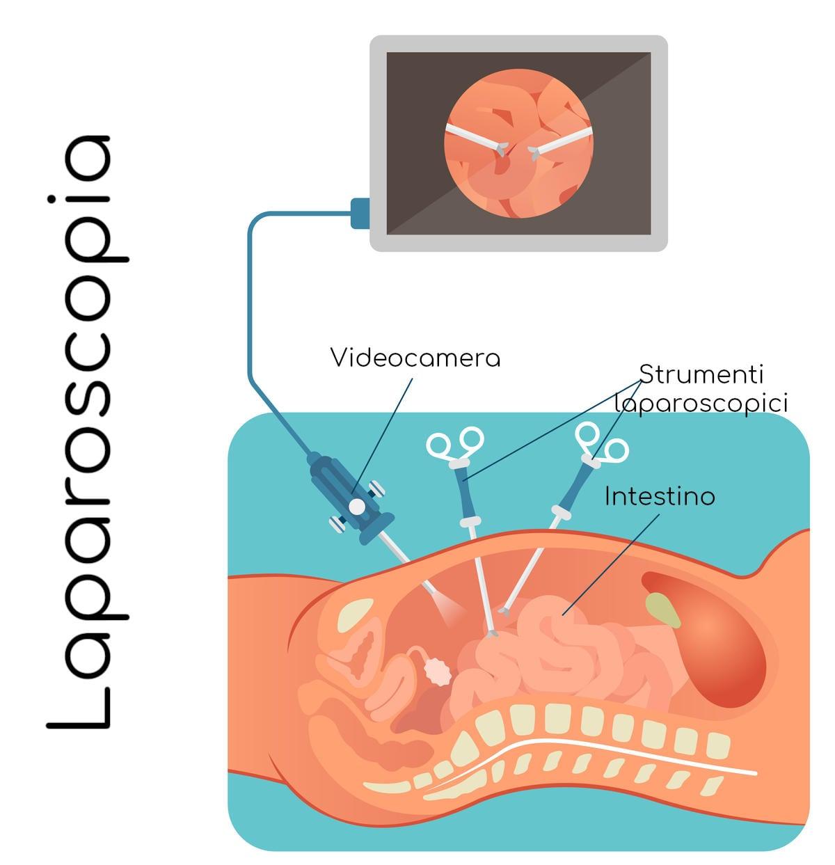 Semplificazione di un intervento in laparoscopia