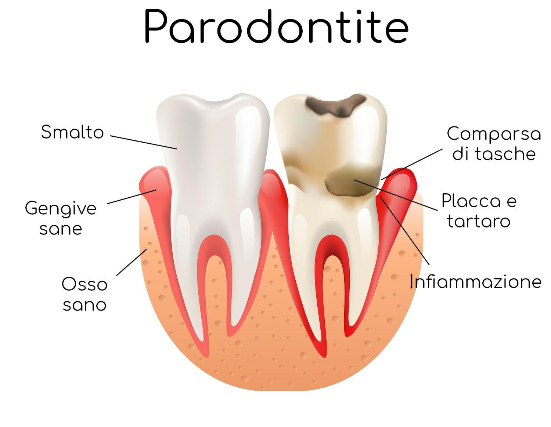 Anatomia semplificata della parodontite