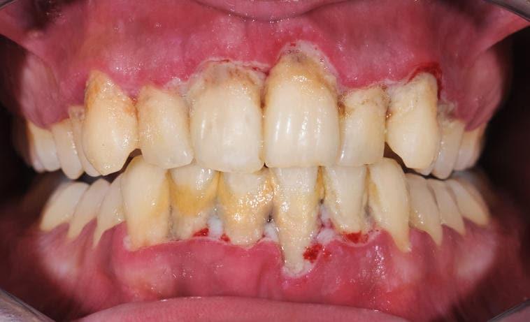 Fotografia di una bocca affetta da parodontite