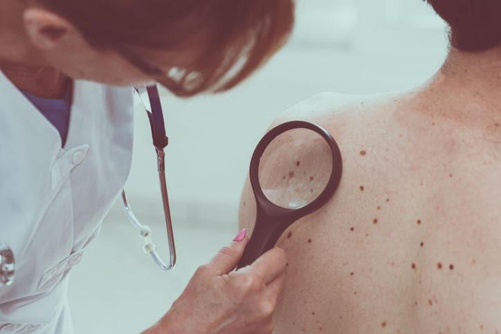 Dermatologo che osserva un melanoma su un paziente