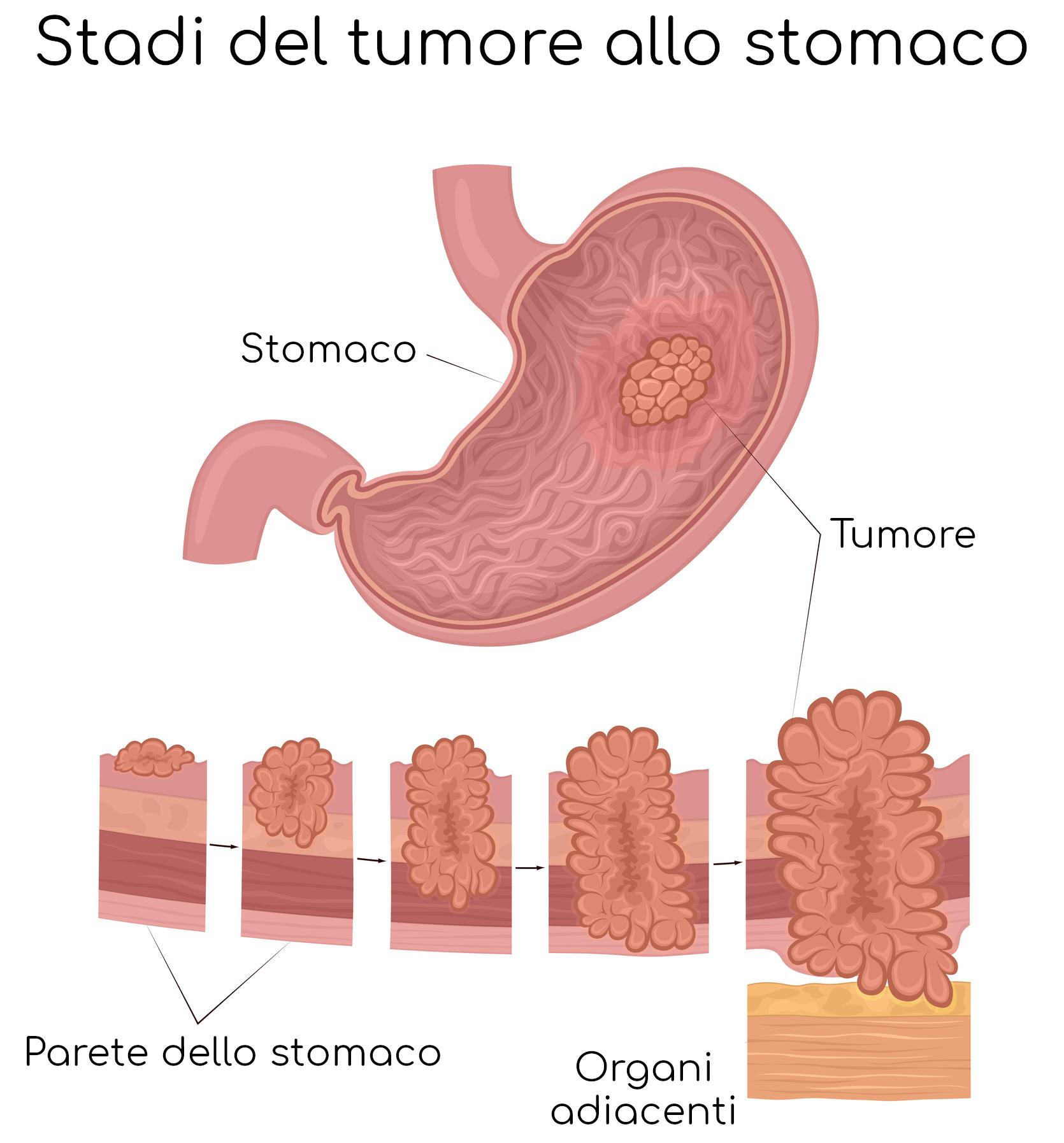 Stadiazione del tumore allo stomaco