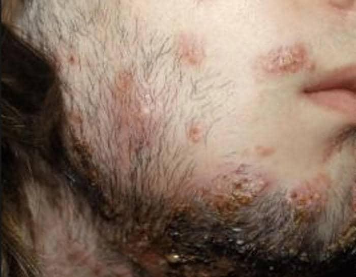 Tigna della barba sulla guancia di un paziente