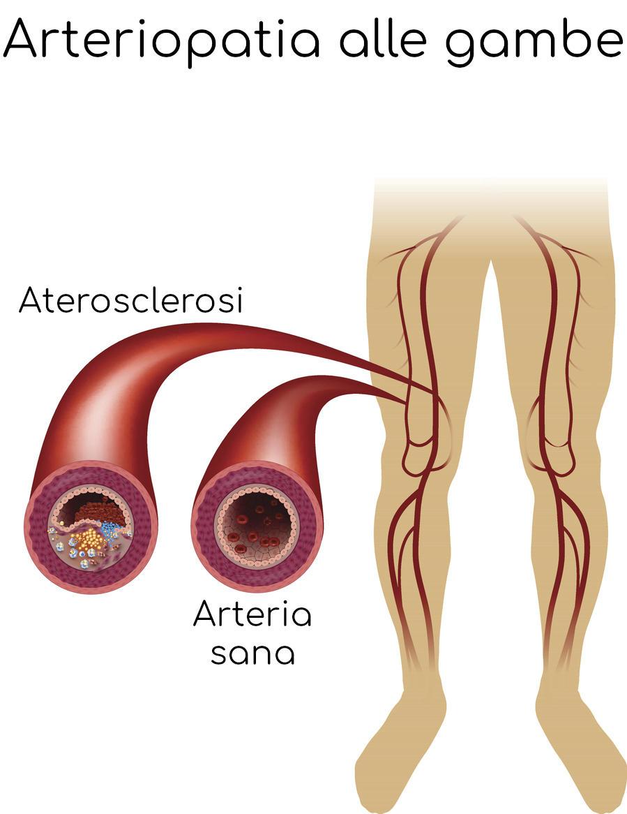 Esemplificazione della chiusura dell'arteria a causa dell'aterosclerosi