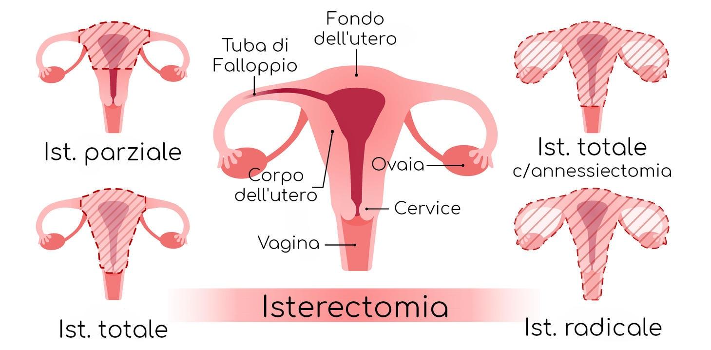 Anatomia semplificata dei diversi approcci all'isterectomia