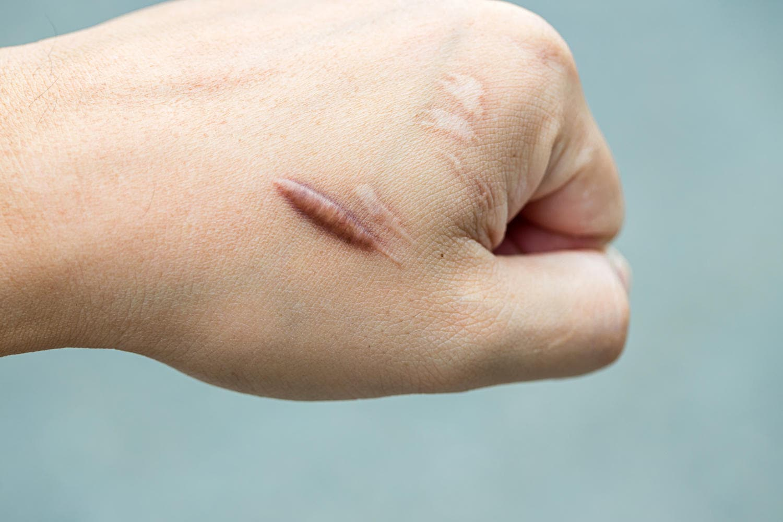 Cicatrice ipertrofica