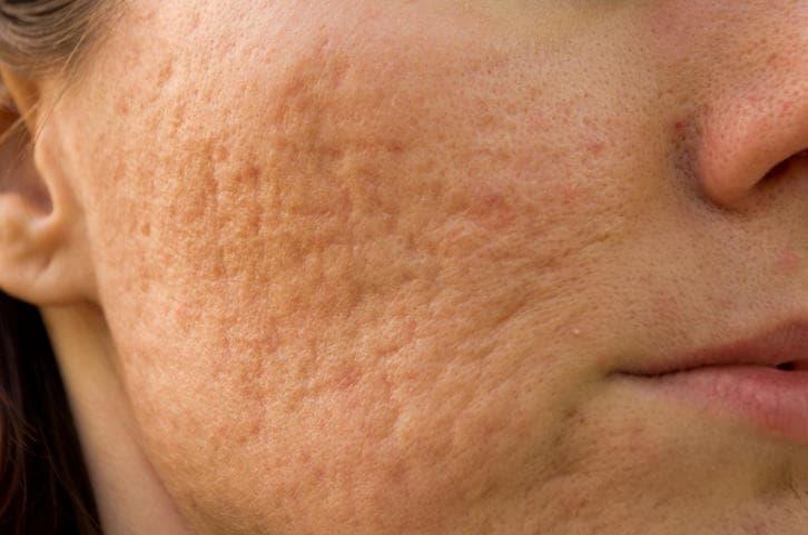 Primo piano di cicatrici da acne