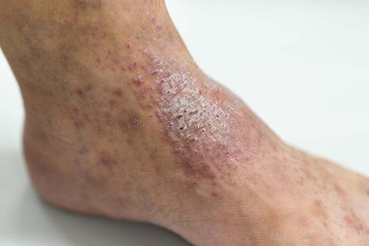 Lichenificazione delle dermatite atopica nel soggetto adulto