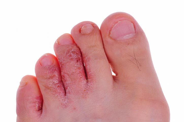 Tinea pedis sulle dita del piede