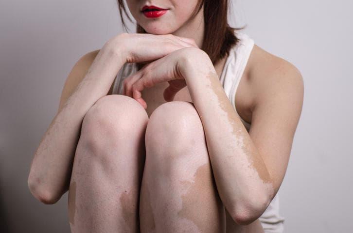 Fotografia di una donna con gli arti interessati dalla vitiligine