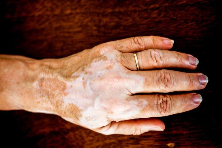 Fotografia di vitiligine sulla mano