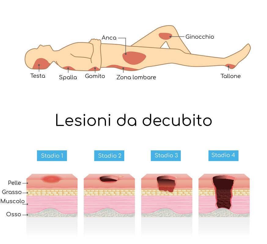Rappresentazione grafica delle zone più soggette a ulcere da decubito e grado di profondità