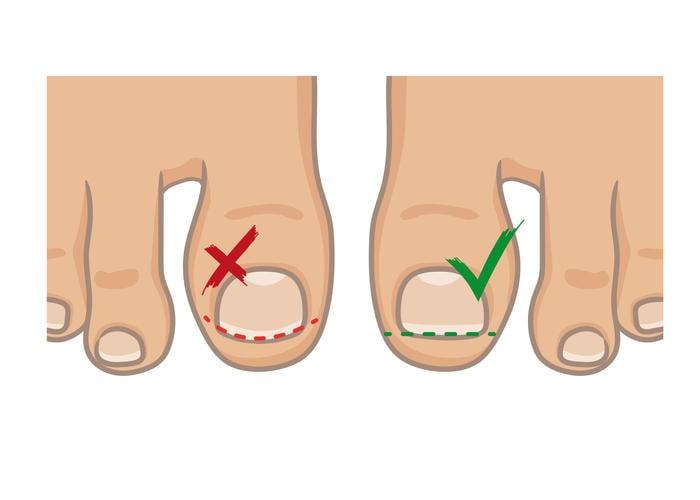 Modalità di prevenzione dell'unghia incarnita