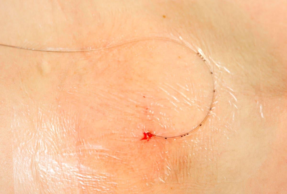 Catetere in sede per epidurale