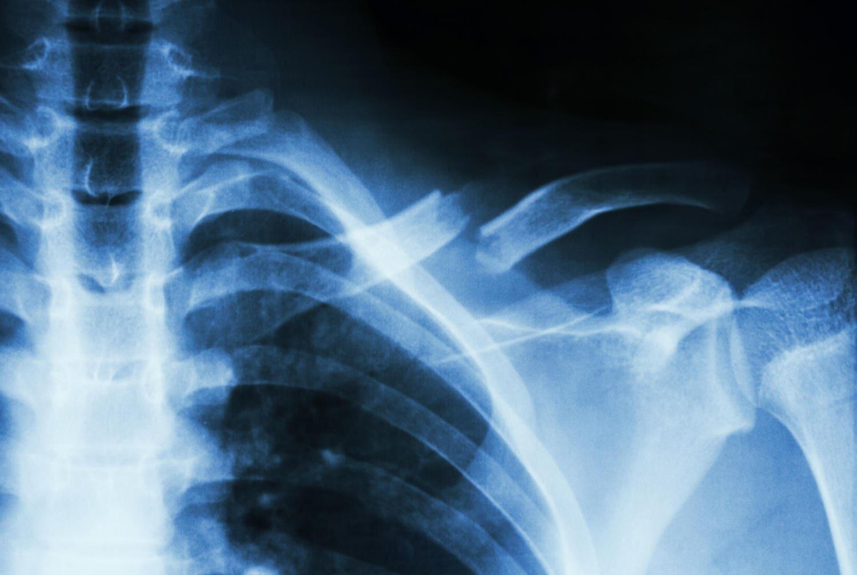 Frattura visibile alla radiografia