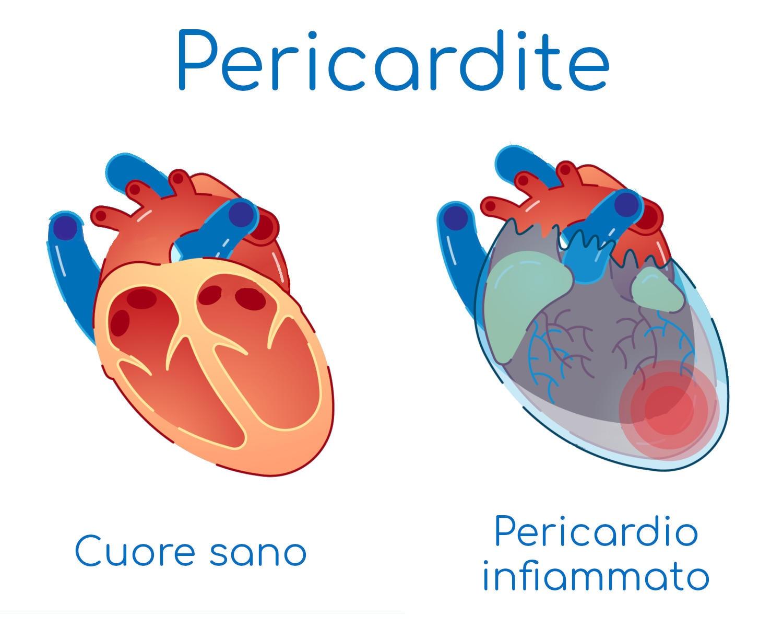 Infografica semplificata dell'infiammazione del pericardio, la membrana che circonda il cuore