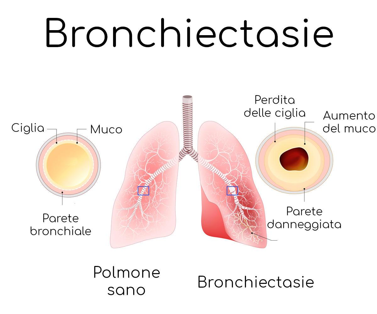 Semplificazione anatomica delle bronchiectasie