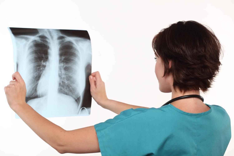 Medico analizza una radiografia