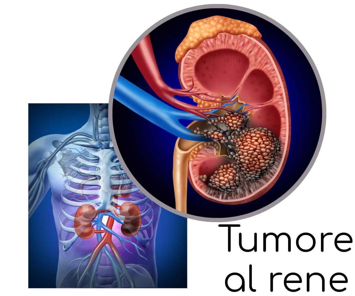Localizzazione anatomica dei reni e schematizzazione grafica della presenza di tumore