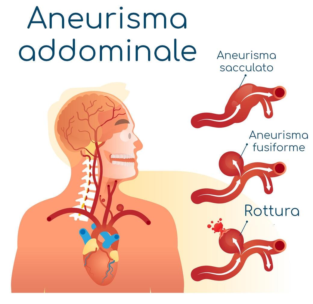 Aneurisma addominale