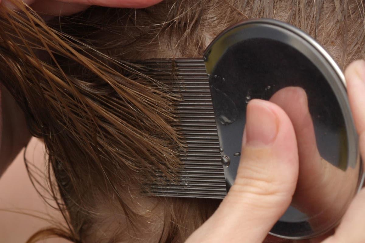Pettine a maglie fini per il trattamento dei pidocchi