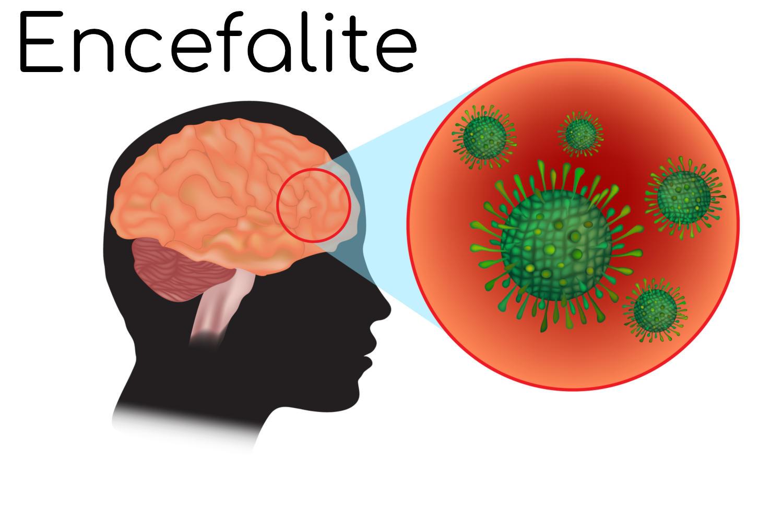 Posizione anatomica del cervello