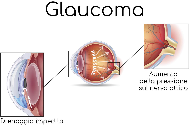 Esempio di glaucoma, in questo caso legato ad un blocco dei canali di drenaggio del liquido contenuto