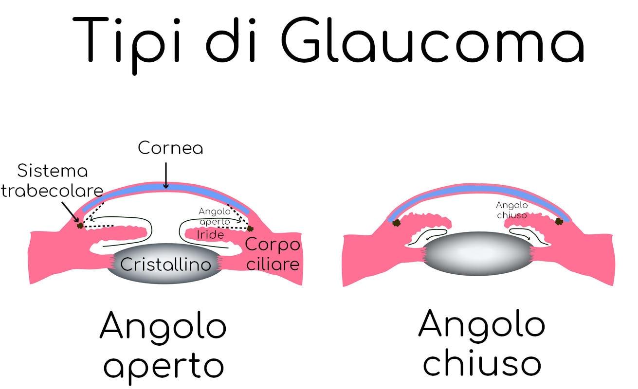 Glaucoma ad angolo aperto e chiuso