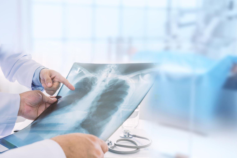 medico che osserva una radiografia
