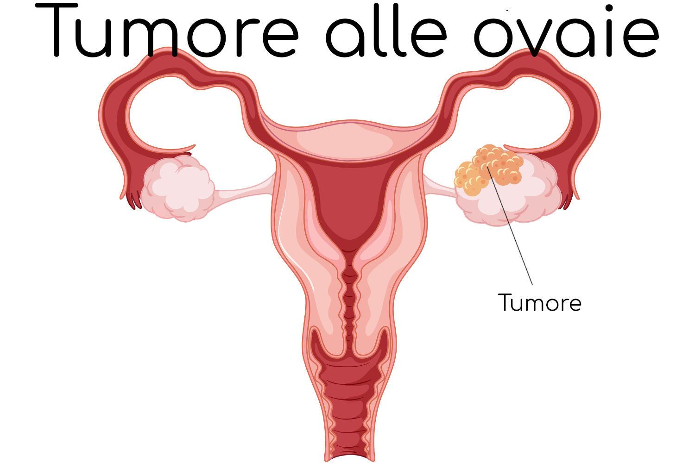 Anatomia semplificata del tumore alle ovaie