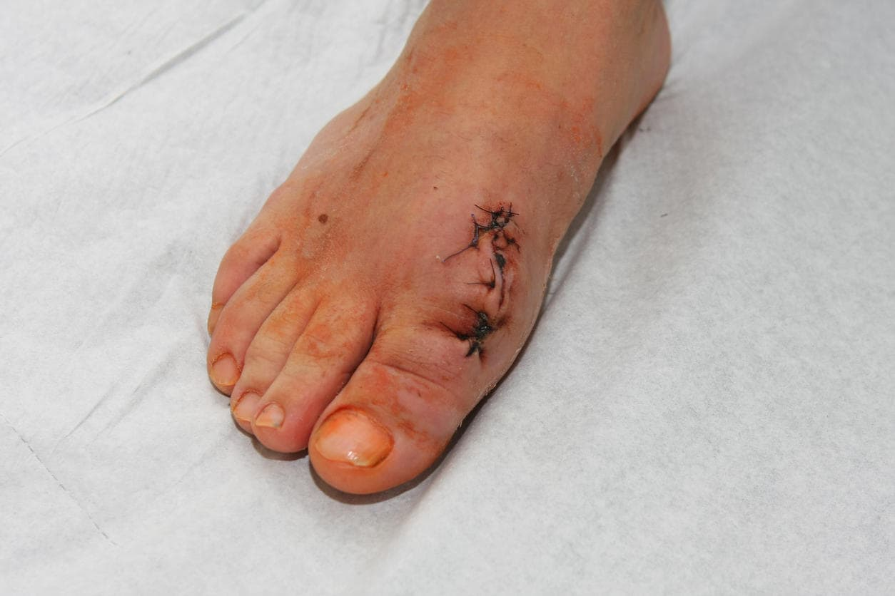 Cicatrice post-intervento alluce valgo
