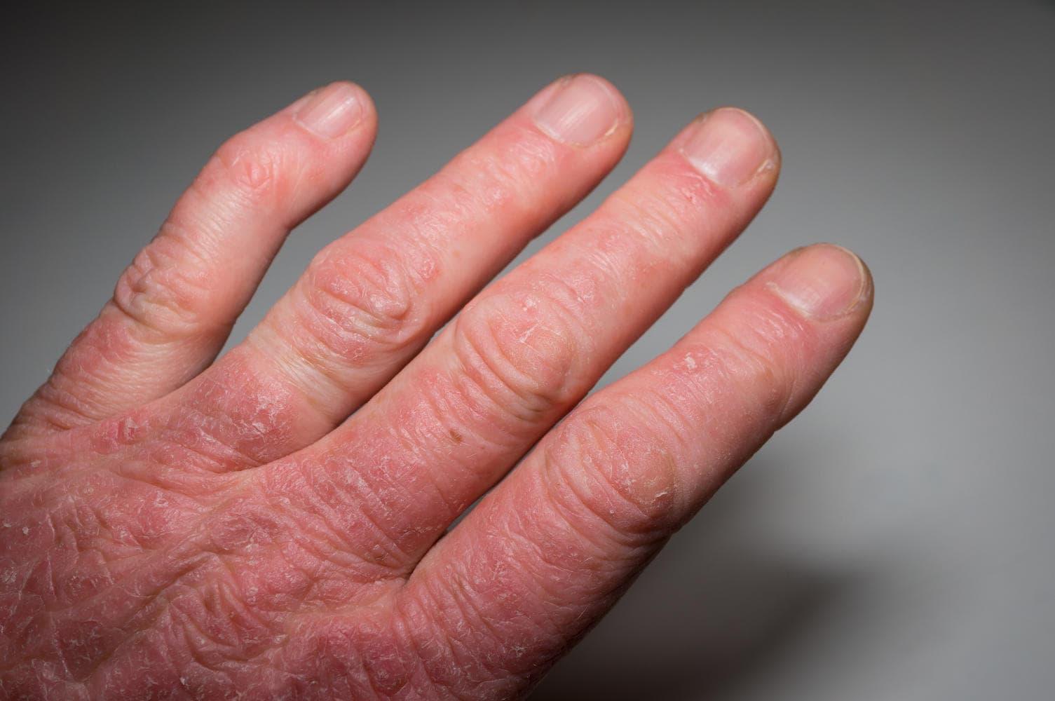 Mano di paziente affetto da artrite psoriasica