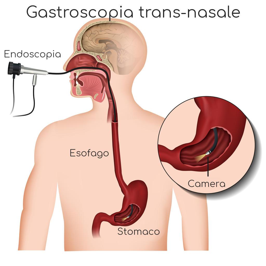Infografica semplificata della gastroscopia transnasale