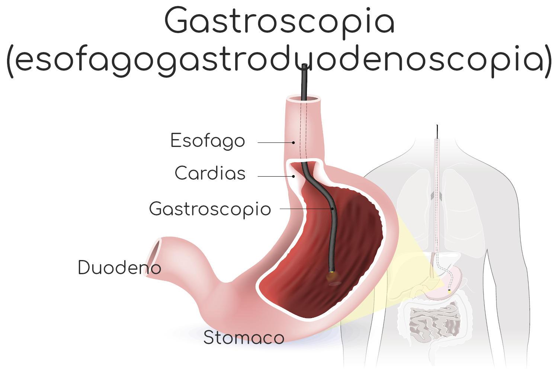 Infografica semplificata della gastroscopia