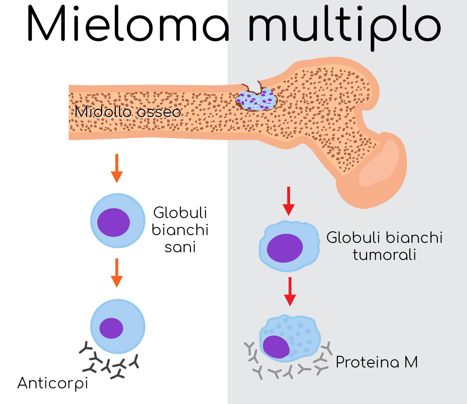 Differenza tra cellule sane e cellule tumorali (mieloma multiplo)