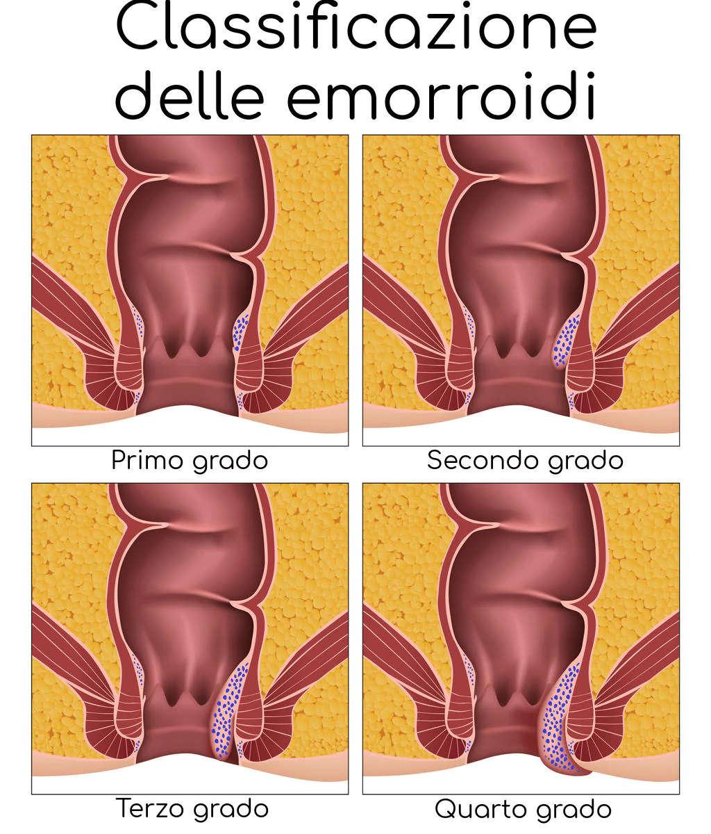 Stadi e classificazione della malattia emorroidaria