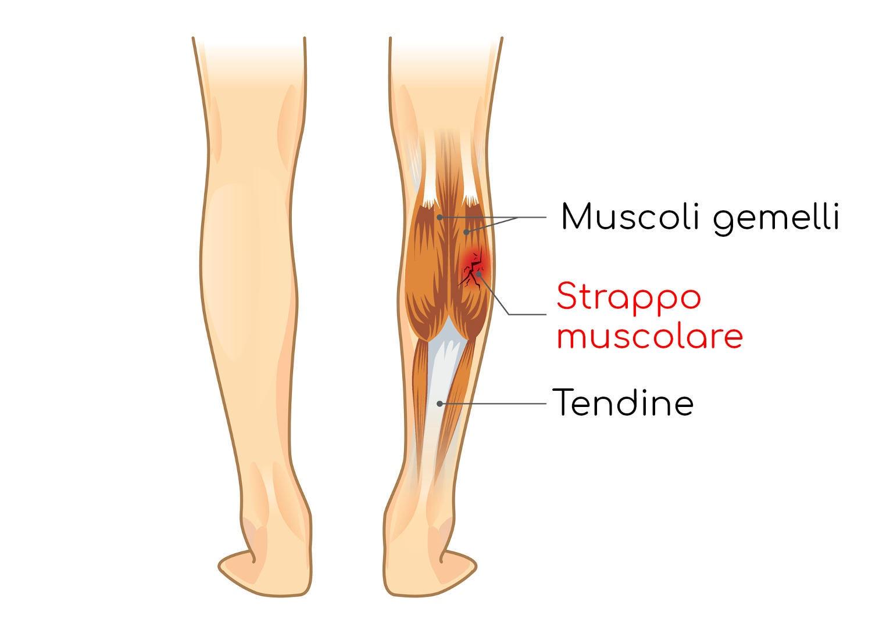 Strappo muscolare al polpaccio