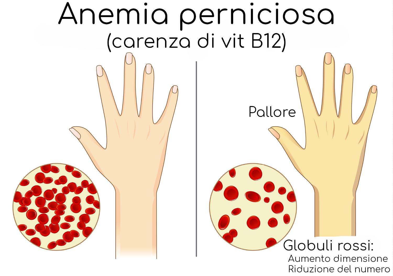 Anemia perniciosa e confronto dei globuli rossi