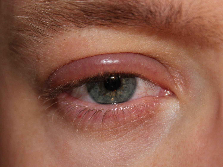 Occhio affetto da blefarite