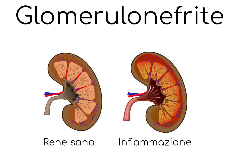 Paragone semplificato di un rene sano e uno infiammato