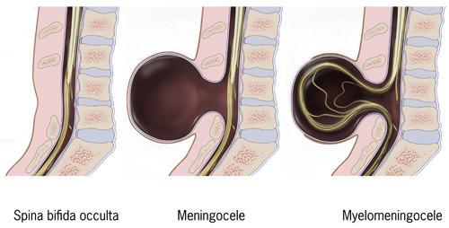 Le diverse forme di spina bifida