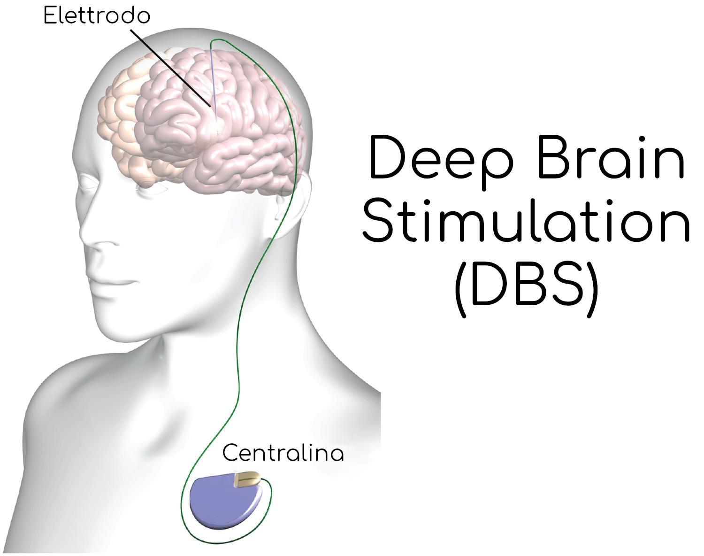 Schema semplificato di un dispositivo per la DBS