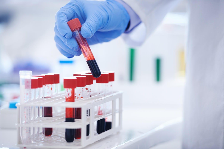 Provetta di sangue per l'esame dell'emocromo, che comprende fra l'altro il MCHC